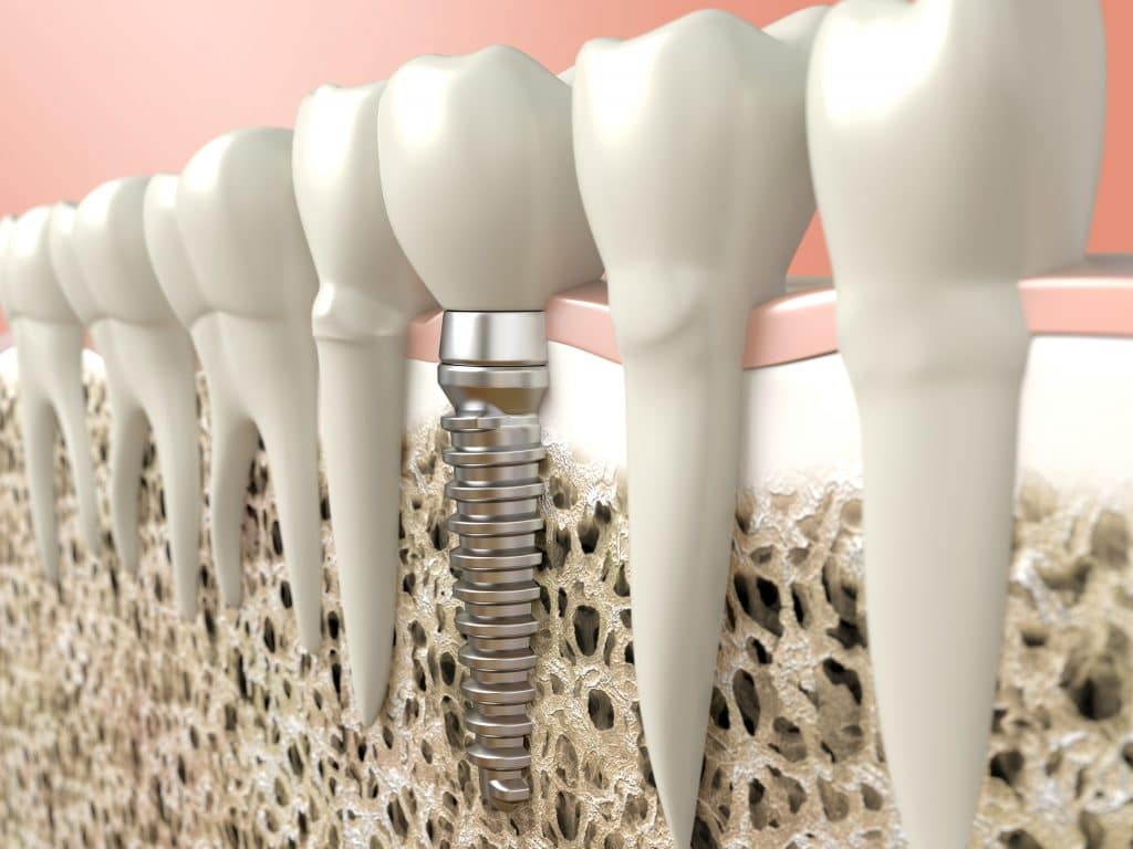 citrus heights dental implants