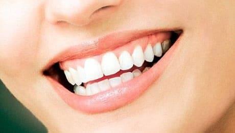 citrus heights dental white smile