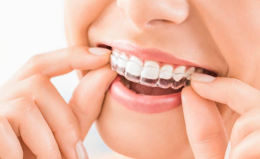 citrus heights dental invisalign