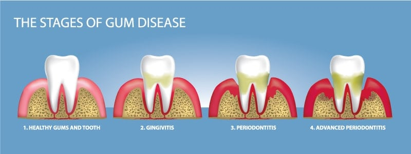 citrus heights dental stages of gum disease